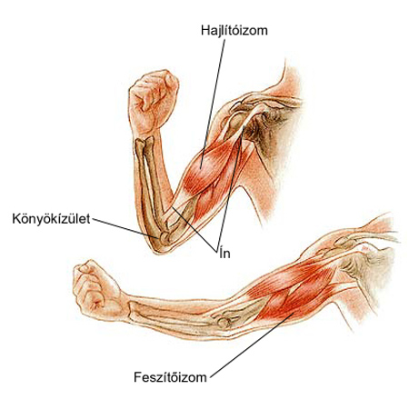 gyulladás a könyökízület epicondylitisében)