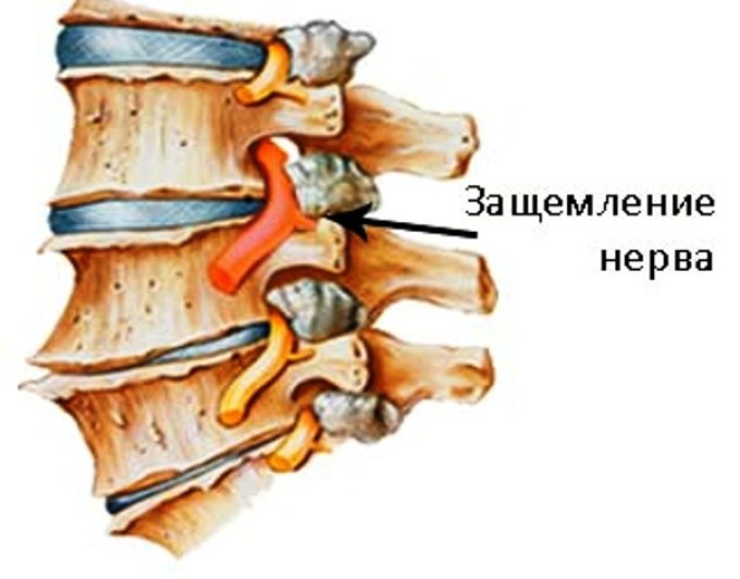 dimexid a vállízület fájdalmában