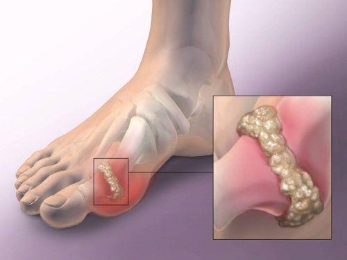 a láb ízületeinek ízületi gyulladása)