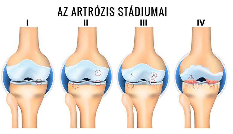 * Artrózis - Betegségek - Online Lexikon