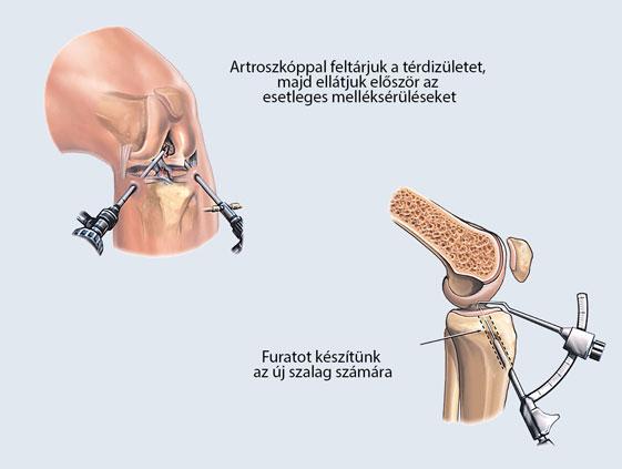 a térd keresztező szalagjának kezelése)
