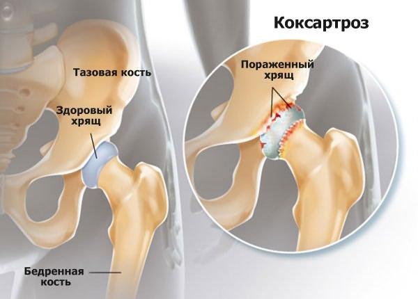 a csípőízület deformáló osteoarthrosisának kezelése 2 fokkal