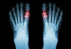 metatarsophalangeal joint osteoarthritis)