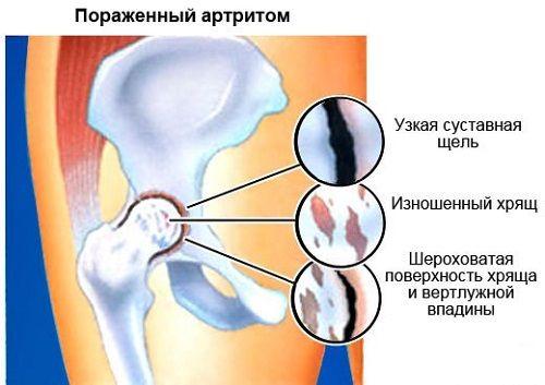 mi fáj a csípőízület artrózisában