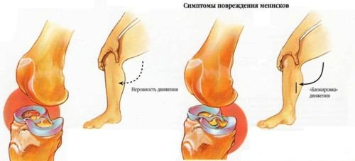 térdkészítmények osteoarthritis