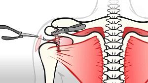 a vállízület fáj a rudak után ízületi fájdalom az erőfeszítés után