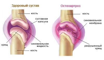 a kéz kis ízületeinek osteoarthrosis kezelése