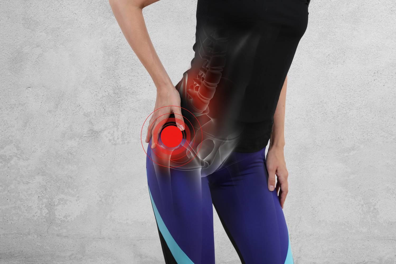 ízületi fájdalom a csípő területén