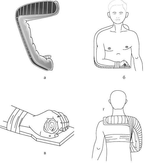 a deformáló artrózis kezelési standardjai