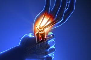 elviselhetetlen fájdalom a kéz ízületeiben