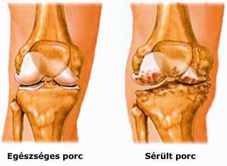 a láb ízületeit deformáló ízületi kezelés)
