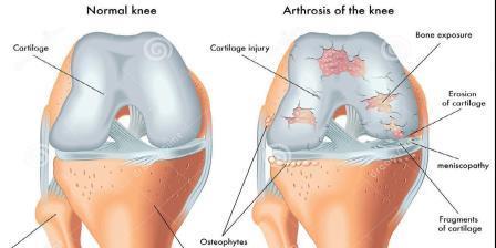 térdízületi meniszkusz artrózisa)