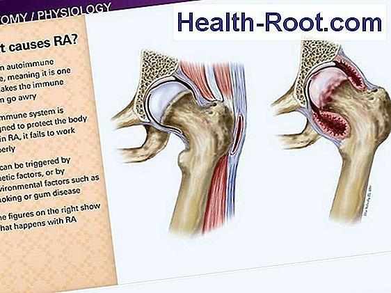 hogyan lehet ízületeket kialakítani a rheumatoid arthritisben)