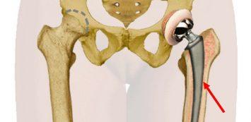 csípőízület gyulladáskezelése