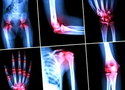 a bokaízület subtaláris artrózisa