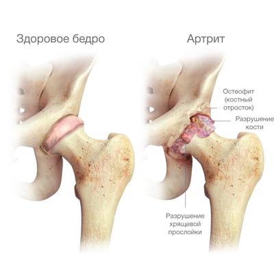 hogyan lehet lefogyni a csípőízület artrózisával