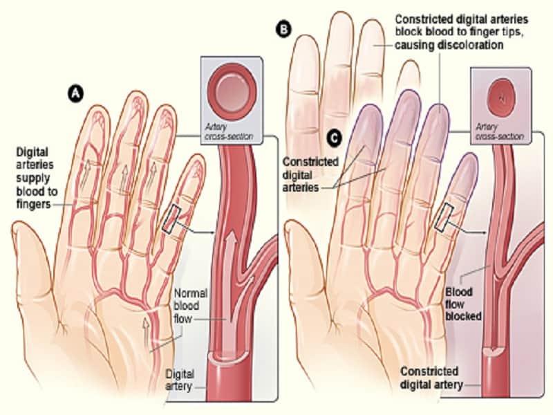háztartási gyógyszerek ízületi fájdalmakhoz gyógyítja a fiatalkori ízületi gyulladást