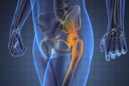 hatékony gyógyszer a csípőízület fájdalmairól