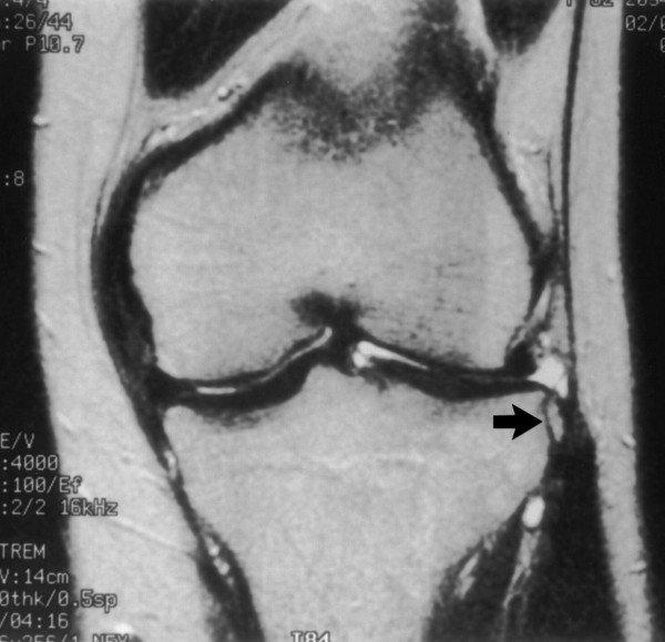 fájdalom a gerinc és a vállízületekben