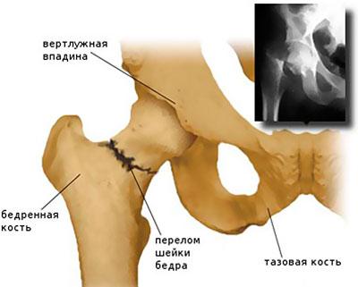1-2 csípőízület artrózisa