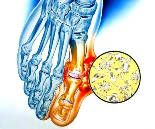 az ízületek fájnak az erőfeszítés után a könyökízület epicondylitisének kezelése dimexidummal