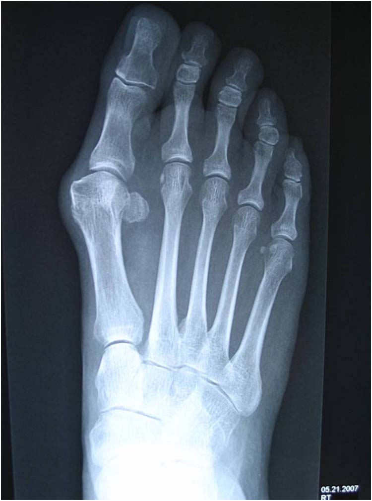 first metatarsophalangeal joint osteoarthritis treatment