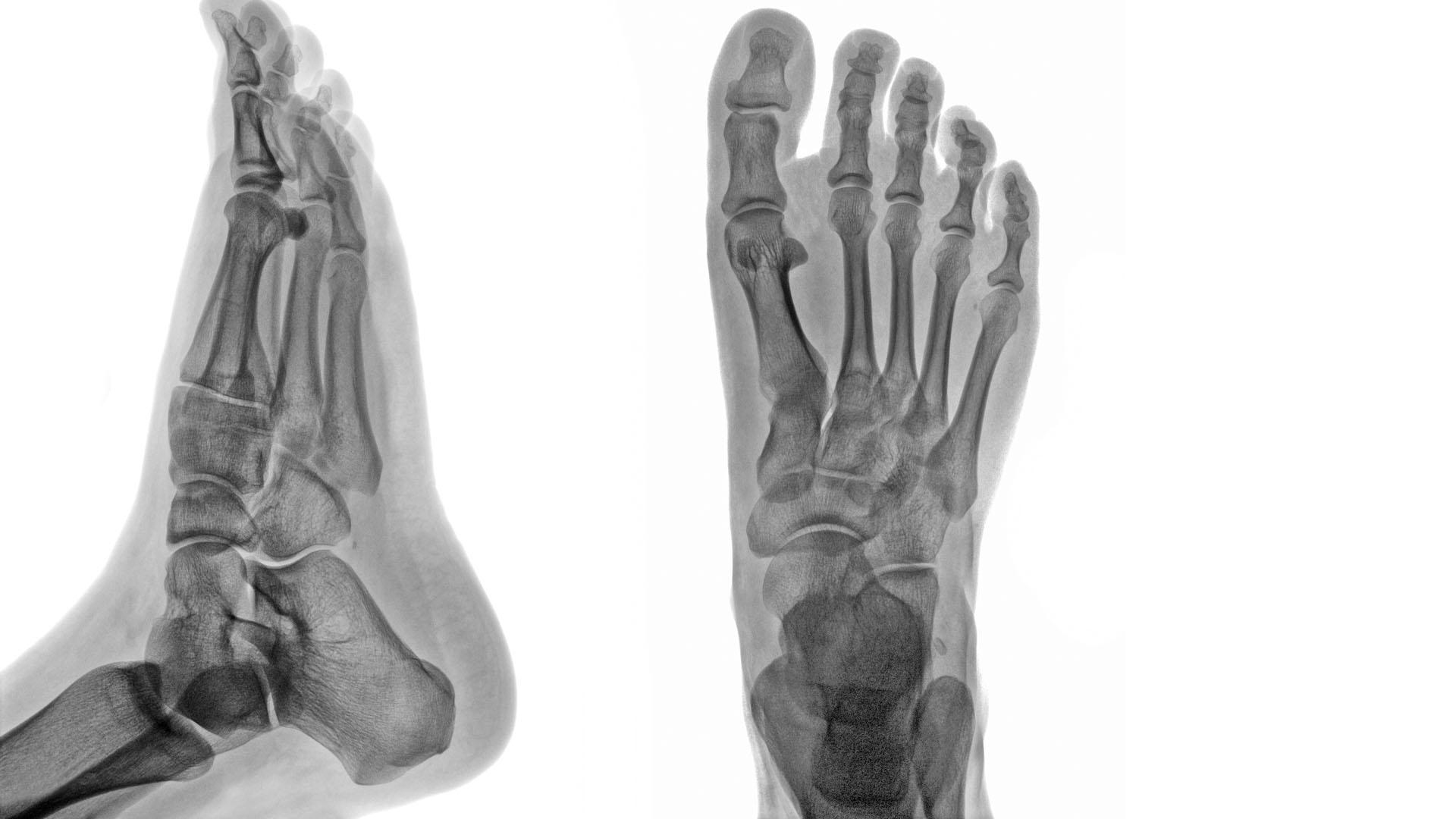 a lábak falának ízületei deformáló artrózisa dimexid és ízületi kezelés