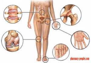Pusztuló porcok nyomában - a kopásos ízületi betegségek és terápiás lehetőségei