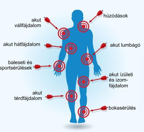 gyógyszer az akut ízületi fájdalmakhoz)
