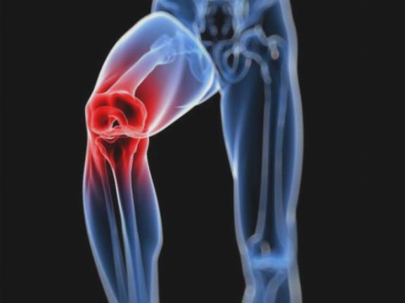 Artra - használati utasítás, dózisok, analógok