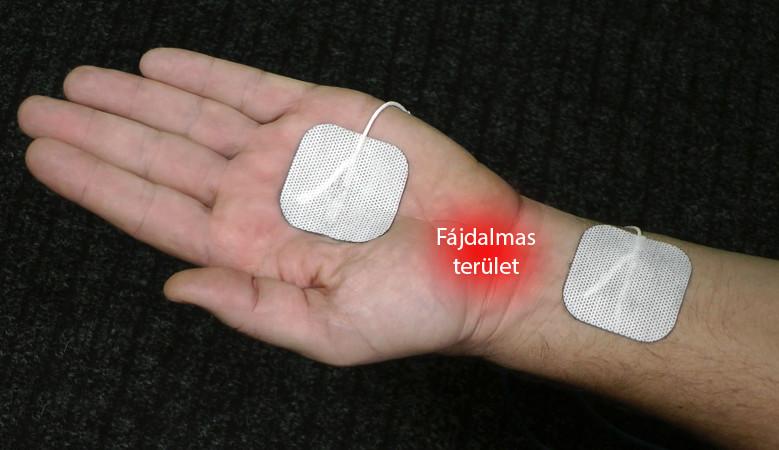 ízületi fájdalom a könyökben edzés közben a 2. fokú térdízületi gyulladás kezelése zselatinnal