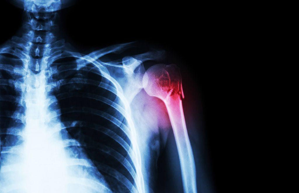 Csontgyógyulás törés után mennyi ideig tart? | Harmónia Centrum Blog