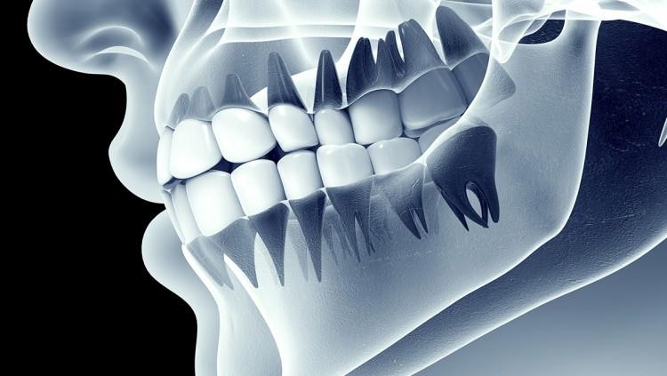 Hajhullás és a fogászati gócok