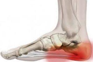 hogyan kezeljük a kis lábujj artrózisát