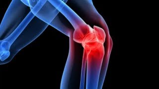 hogyan kezeljük a térdízületeket artrózissal)