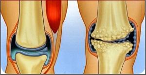 hatékony kenőcsök a térdízület ízületi gyulladásáért kenőcs az ízületek fájdalmának és gyulladásának enyhítésére