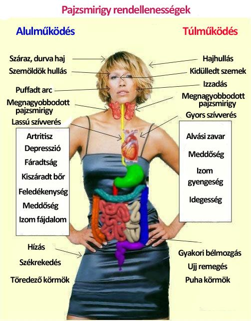 hyperthyreosis és ízületi fájdalmak)