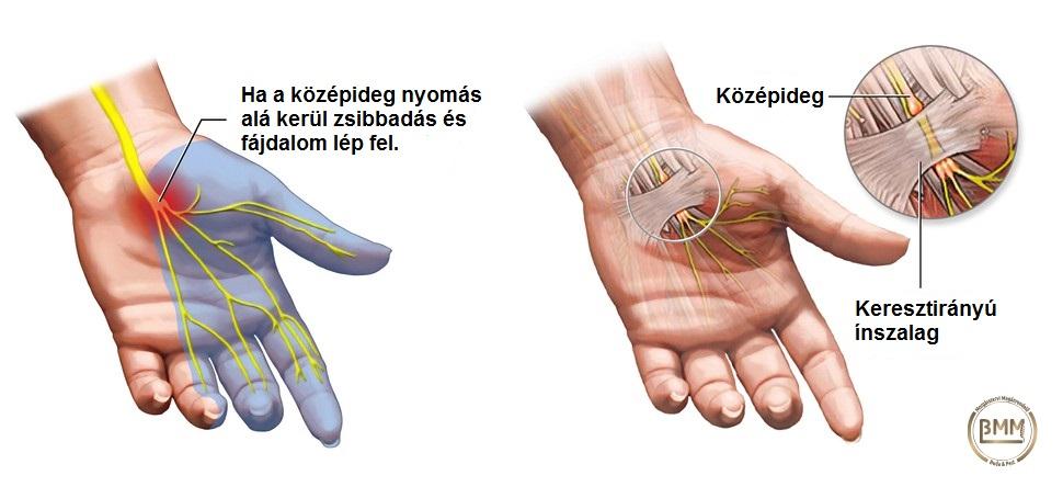kattintással fáj a lábízület