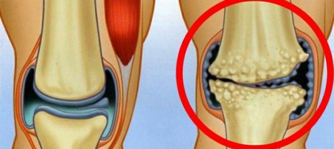 kenőcs artrózis kezelésére)