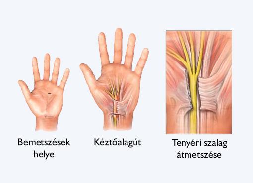 könyök alagút szindróma tünetei)