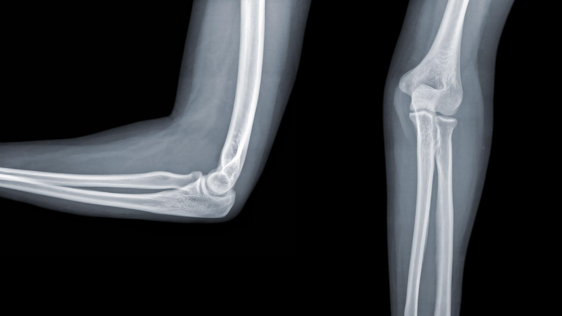 könyök reumatoid artrosis)