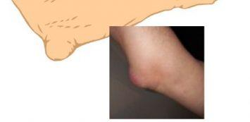 könyökízület sérülés kezelése