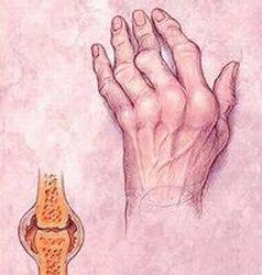 lehetséges az ízületek megváltoztatása rheumatoid arthritisben)