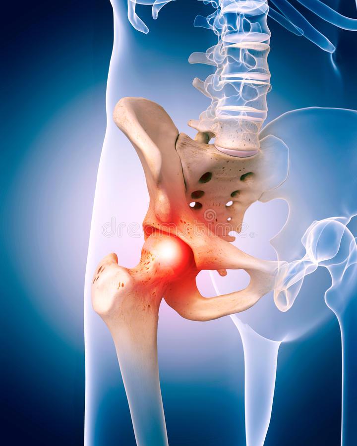 éles fájdalom a csípőízület séta közben)