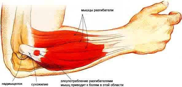 éles fájdalom a metatarsális phalangeális ízületben kenőcsök és krémek ízületi fájdalmakhoz