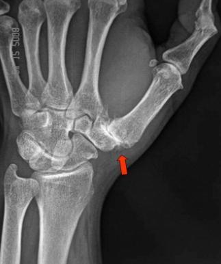 metacarpalis artrosis a vállízület lézeres kezelése