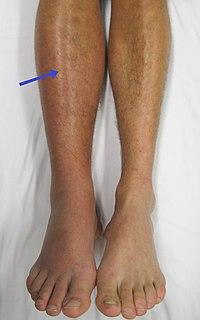 A boka ízületének szalagjai: tünetek és kezelés - Bőrgyulladás