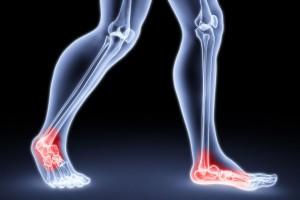 mi a teendő, ha fáj a lábízületek