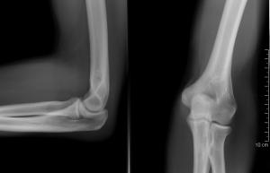 mi fáj a térd artritiszével)