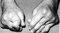 mikoplazma ízületi betegség)